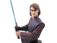 Star Wars Anakin Skywalker (Clone Wars) 1/7 Scale Bust